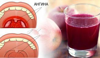 4 часа и симптомите на ангината сякаш не ги е имало! Натурален балсам при болки в гърлото: