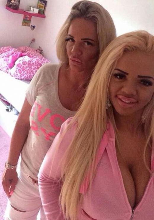 Майка и дъщеря пръснаха над 50 хиляди евро за пластични операции, а резултатът се оказа плачевно страшен! (СНИМКИ)
